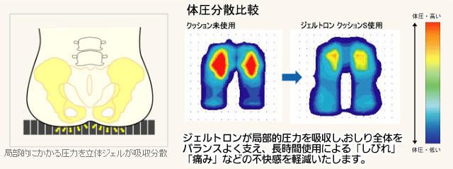 ジュルトロンの体圧分散比較