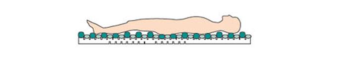 モルテン 高機能エアマットレス アマンダ 体圧分散・3D除圧