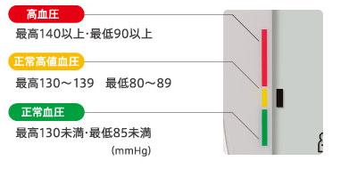 不規則脈波頻度(%IHB)表示02